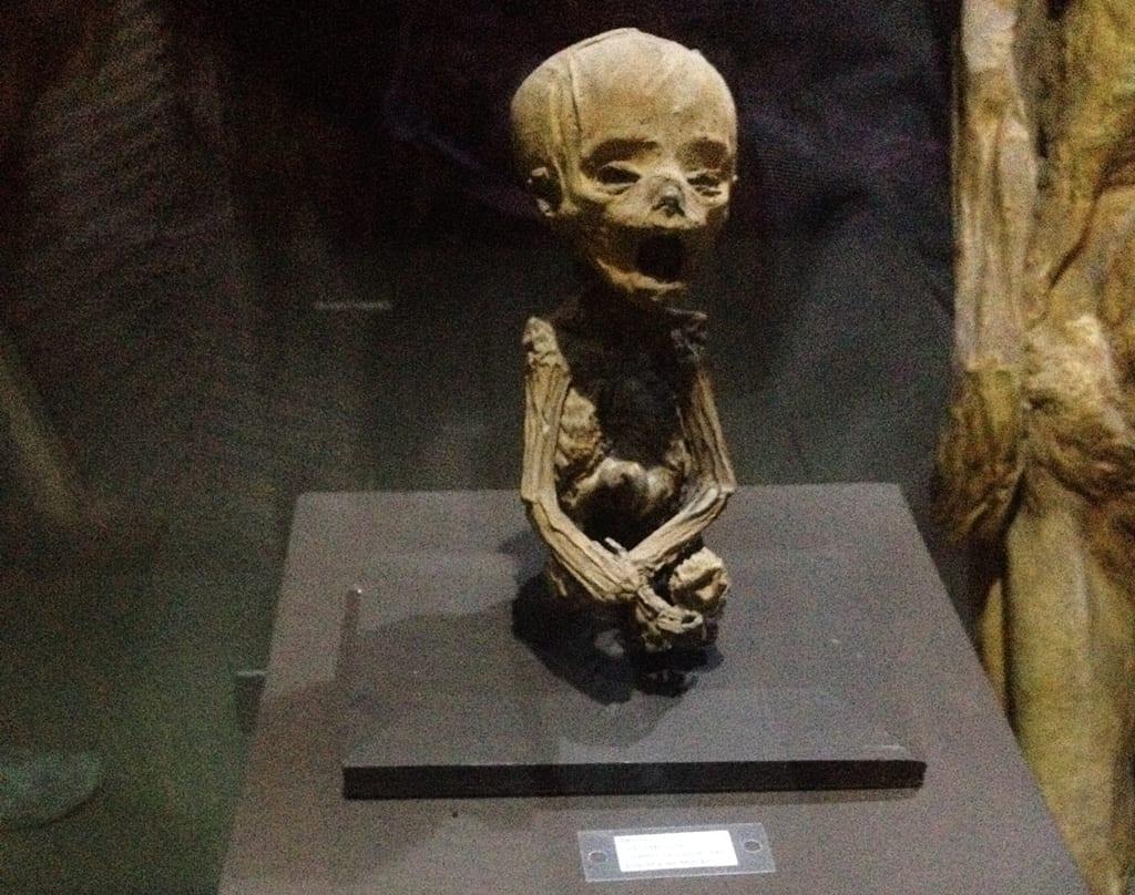 Museo Momias de Guanajuato, feto